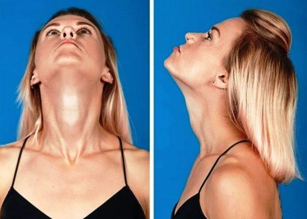 Регулярное выполнение упражнений значительно ускорит процесс подтяжки кожи на лице за счет улучшения тонуса мышц, локального кровотока