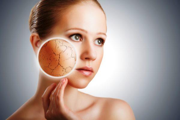 Сухой коже не хватает липидов, а значит и защиты