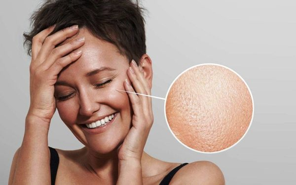 Большое количество жира надолго защищает от старения, морщин, однако крупные заметные поры быстро закупориваются, лицо может иметь нечистый вид