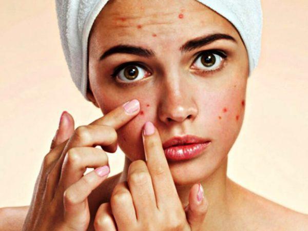 В случае с жирной и проблемной кожей заниматься самолечением не стоит, надо обратиться к специалисту