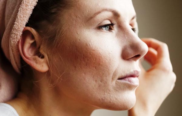 В некоторых случаях избыточная жирность кожи может провоцироваться не одной, а несколькими из вышесказанных причин