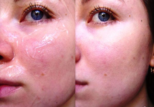 Маска после нанесения не создаёт ощущения вязкости и липкости. Она подходит для любой кожи, в том числе и к той, которая предрасположена к аллергии и высыпаниям