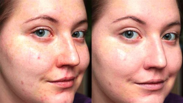 Показания к применению вакуумной чистке лица