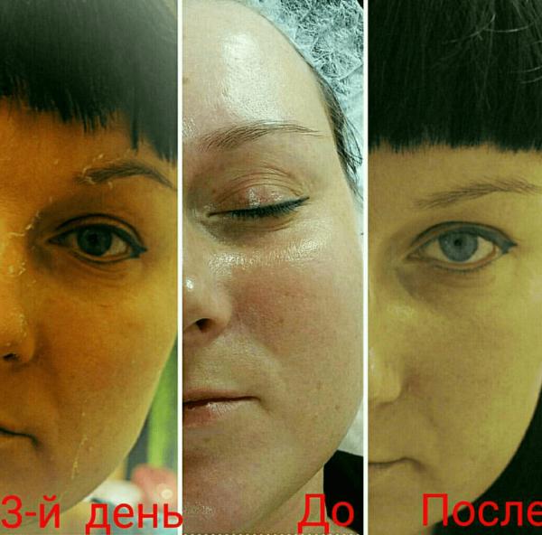 fenolovyj-piling-otzyv-min-5121291