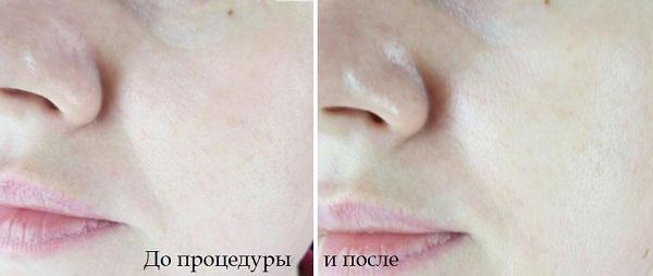 Отзывы о альгинатной маске с аргирелином Amyno-Lifting Mask