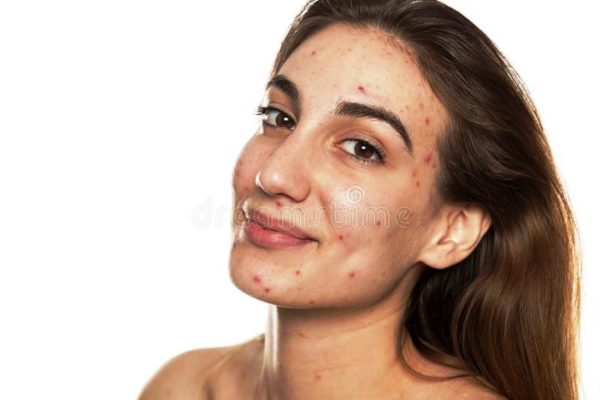 Прыщи и покраснения, нездоровый цвет, шелушение – все это признаки проблемной кожи, которая требует специального ухода